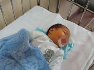 Hà Nội: Sinh con hở hàm ếch, bà mẹ bỏ rơi con luôn ở bệnh viện