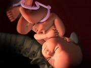 Thai nhi 40 tuần tuổi: Hầu hết chào đời với cái đầu méo