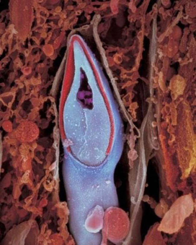 Tinh trùng khi đã ở bên trong trứng.