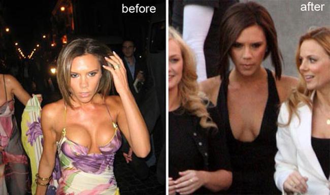 Victoria đã phải đi tháo bỏ túi độn ngực vì nhận nhiều lời chê bai của người hâm mộ.