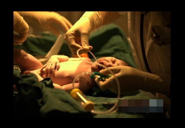 Sau khi chào đời, bé sơ sinh nhanh chóng được bác sĩ vệ sinh và thông đờm, dãi.