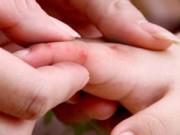Tin trong nước - Hà Nội xuất hiện 5 ổ dịch tay chân miệng