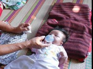Sức sống kì diệu của bé có 2 trái tim độc nhất vô nhị