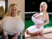Phẫu thuật thẩm mỹ - Siêu mẫu người Đức khoe siêu vòng một nặng 18 kg