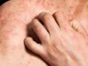 Sức khỏe - Bệnh chàm làm tăng nguy cơ bệnh tim, đột quỵ