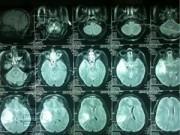 Y tế - Câu chuyện cảm động của sản phụ bị xuất huyết não