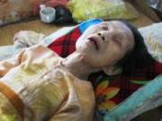 Tin tức - Những người chết đi sống lại hy hữu ở Việt Nam