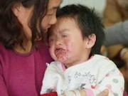 Làm mẹ - TQ: Hai trẻ loét miệng vì ăn quà vặt Trung Quốc