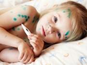 Sức khỏe - Bệnh thủy đậu cà cách điều trị nhanh khỏi, không để lại sẹo