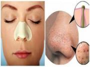 Trị mụn - Chiêu độc trị nhanh mụn đầu đen ở mũi