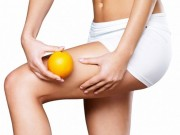 Mẹo hay chữa bệnh da sần vỏ cam ở người béo