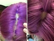 Làm đẹp - Cô gái Việt bị phồng rộp, tróc da đầu vì nhuộm tóc