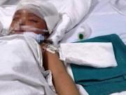 Tin tức - Nghệ An: Bé 3 tuổi bị cán cầu lông đâm xuyên não