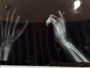 Tin tức - Bé trai 11 tuổi tự cắt ngón tay vì bị cấm dùng smartphone