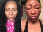 Làm đẹp - Cô gái biến dạng khuôn mặt vì dị ứng thuốc nhuộm tóc