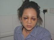 Tin tức - Thiếu uý công an đánh bạn gái: Nạn nhân bất ngờ rút đơn tố cáo