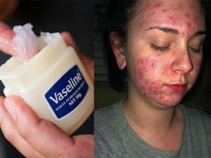 Đừng quá tôn sùng Vaseline trong làm đẹp mà không biết đến những tác hại này của chúng