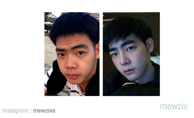 Mewzix Suradat, 21 tuổi, hiện đang là sinh viên năm 3 một trường đại học danh tiếng của Thái Lan mới đây đã công bố những hình ảnh phẫu thuật thẩm mỹ 'rùng rợn' của mình.