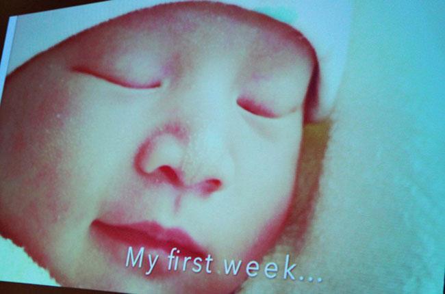 Bé Anna tuần đầu tiên sau sinh.