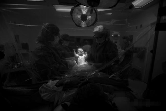 Và rất nhanh chóng, chỉ sau khi vết dao đầu tiên đặt lên bụng mẹ được 10 phút, em bé đã chào đời.