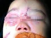 Tin tức - Cứu sống bé trai 3 tuổi bị chó cắn nát mắt, rách võng mạc