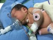Tin tức - Bác sĩ vượt gần 1.000km cứu sống bệnh nhi 3 ngày tuổi