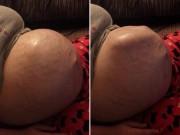Bà bầu - Kinh ngạc với chuyển động của thai nhi dưới làn da bụng mẹ