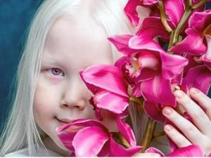 Cô bé bạch tạng với mái tóc trắng mượt được gọi là Bạch Tuyết của Siberi