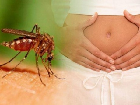 TP.HCM ghi nhận 51 thai phụ nhiễm virus Zika