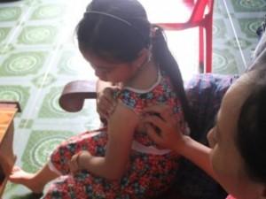 Lời kể của bé gái lớp 4 bị kẻ lạ tiêm thuốc mê vào tay để bắt cóc ở Nghệ An