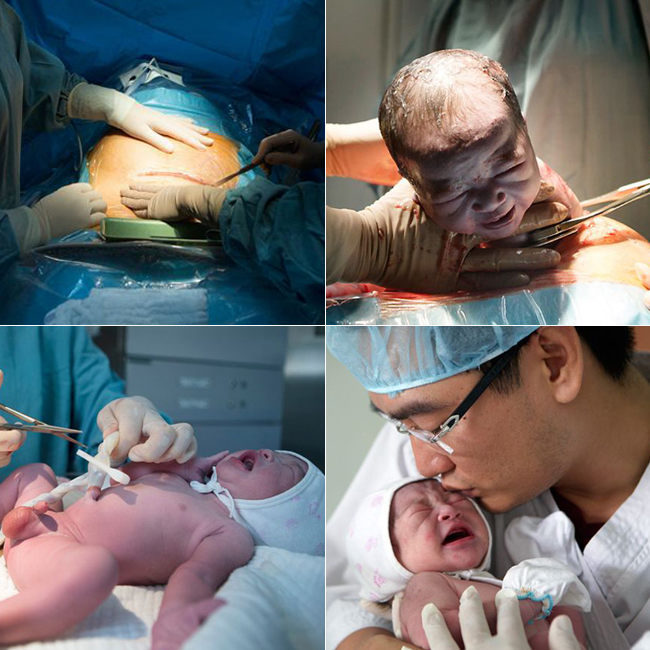 Một ê kíp bác sĩ và phụ mổ gồm 5 người đã khéo léo tiến hành phẫu thuật thành công để đưa một em bé ra khỏi bụng mẹ trong thời gian 40 phút.
