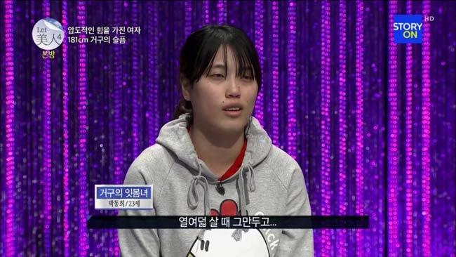 Yoona là một cô gái sinh ra đã chịu thiệt thòi với hàm răng vổ và hở lợi đến 15mm.