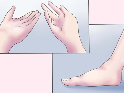 Kết quả hình ảnh cho Sưng chân tay sau sinh