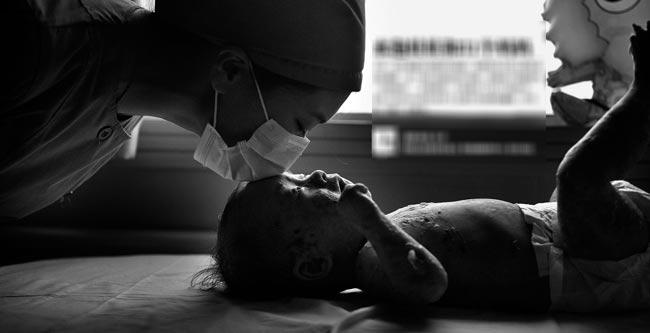 Bộ ảnh về cậu bé bị mắc bệnh hiểm nghèo, cha mẹ bỏ rơi và hiện đang sống dưới sự cưu mang của 31 'bà mẹ' - 31 y bác sỹ trong bệnh viện đang thu hút sự quan tâm, lòng thương cảmlớn ở Trung Quốc.