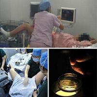 Mô tả bí mật trong phòng thụ tinh ống nghiệm IVF