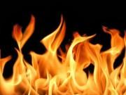 Sức khỏe - Cách cấp cứu bản thân khi gặp tai nạn về lửa