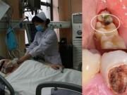 Sức khỏe - Một người đàn ông chết thảm vì... sâu răng