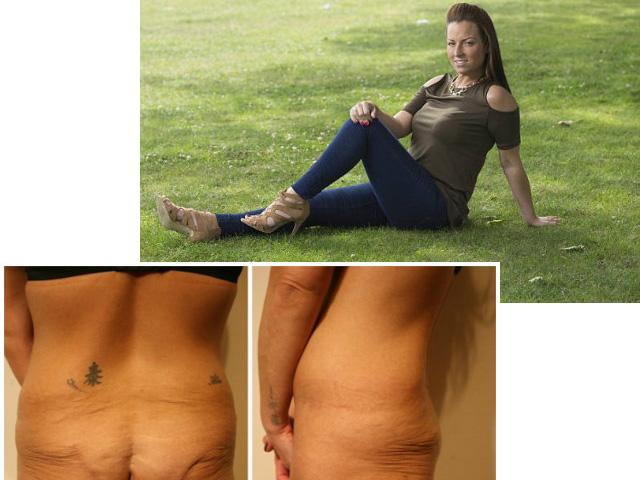 Kinh hoàng vì biến chứng nâng mông của người đẹp