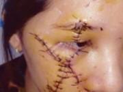 """Tin tức - Nữ tiếp viên bị rạch mặt vì """"nẫng"""" khách của đàn chị"""