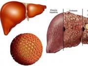 Sức khỏe - 4 loại bệnh để lâu sẽ dẫn đến ung thư