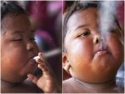 Thân hình 3 năm sau của cậu bé 5 tuổi hút 40 điếu thuốc