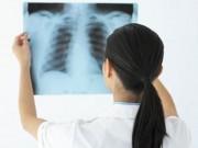 Tin tức - Bệnh ung thư phổi gia tăng ở phụ nữ và tiến triển rất nhanh khi còn trẻ