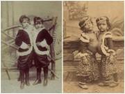 Làm mẹ - Cuộc sống ly kỳ khi lớn của 10 cặp song sinh dính liền nổi tiếng lịch sử (P2)