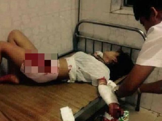 Giận người yêu, thiếu nữ 16 tuổi lấy dao rạch tay tự tử ngay trước mặt