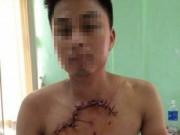 Tin tức - Hy hữu: Cứu sống bệnh nhân bị tai nạn hở tim, phổi ra ngoài