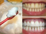 Làm đẹp - Công thức bí mật giúp răng trắng bóng chỉ với dầu dừa