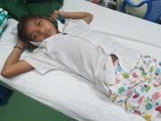 Tin tức - Cứu sống bé gái 14 tuổi bị rắn chàm quạp cực độc cắn