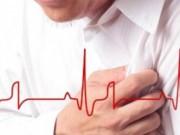 Tin tức - Người nghèo và người ly hôn dễ tái phát bệnh nhồi máu cơ tim và đột quỵ