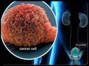 """Sức khỏe - 10 loại thực phẩm càng ăn càng """"nuôi"""" ung thư"""