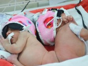 Bà bầu - Nỗi lòng người mẹ 18 tuổi và cặp song sinh dính liền mông